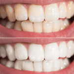 3 SIMPLE STEPS TO WHITER TEETH IN 7 DAYS WITHOUT BLEACH