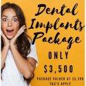 Implant Offer