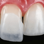 ARE YOU A GOOD CANDIDATE FOR DENTAL VENEER TRETMENT?