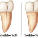 The most important thing you need to know after root canal treatment